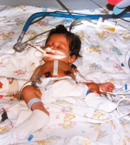 Just after my heart transplant...